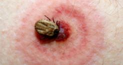 Заболевания, передающиеся клещами